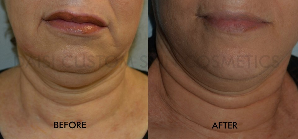 micro-needling chin lift